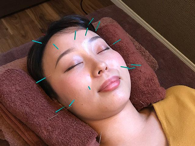 美容鍼灸の様子